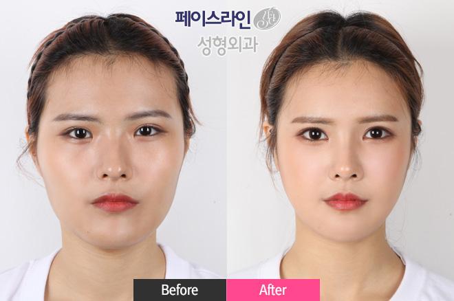 无去除颧骨提升缩小术,Vline雕刻术,驼峰鼻整形,magic内眼角,外眼角,强力脂肪填充