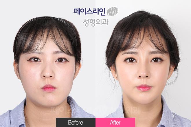 端正的脸整形(面部不对称手术),端正鼻整形(歪鼻),Vline雕刻术,溶脂提升,菲斯莱茵镭射,强力脂肪填充