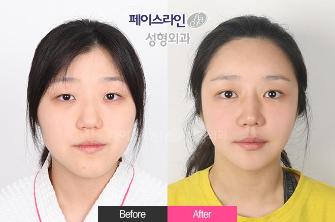 双颚手术,无去除颧骨提升缩小术,角缩小术,修饰的下颚body缩小术,脂肪填充,强力埋线法,眼底脂肪再排列,内眼角,鼻,溶脂提升