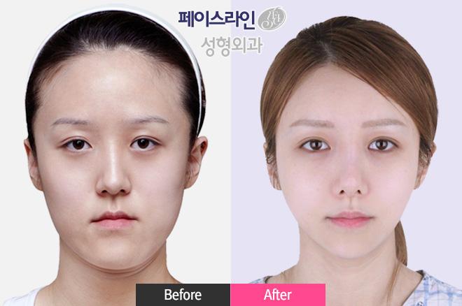 完美鼻部整形,3F手术,Z童颜双颚手术,Vline雕刻术,无去除颧骨提升缩小术,smart额头缩小术,强力脂肪填充,强力埋线法,溶脂提升